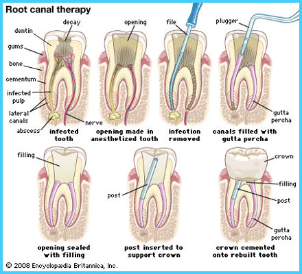 Premier Dental Care - Root Canal Therapy